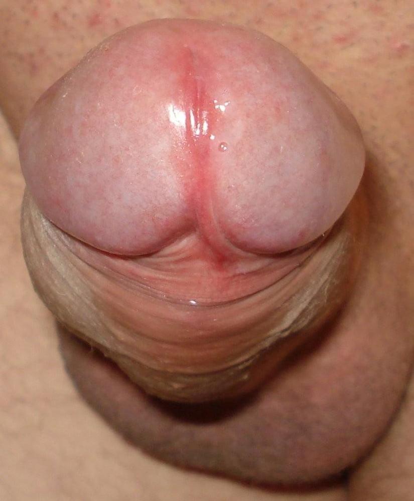Что означает когда капает с пениса перед сексом ответы специалиста, интимные фото кременчугских девушек