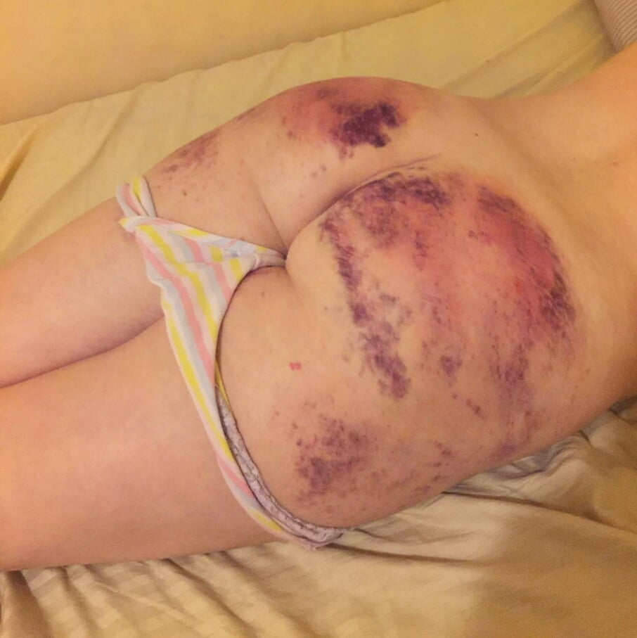 What does a vagina look like after a hysterectomy-5362
