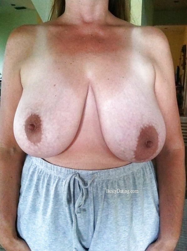 Breast lift areola reduction cost-3579