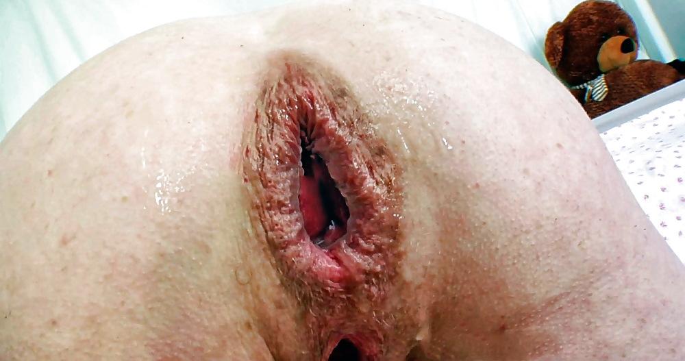 I tried anal bleaching it made me feel like a virgin again and my boyfriend loves it