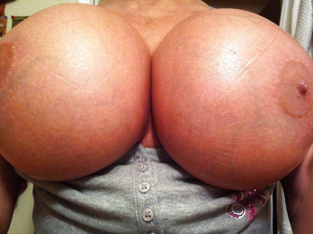 Anatomic breast implants photos