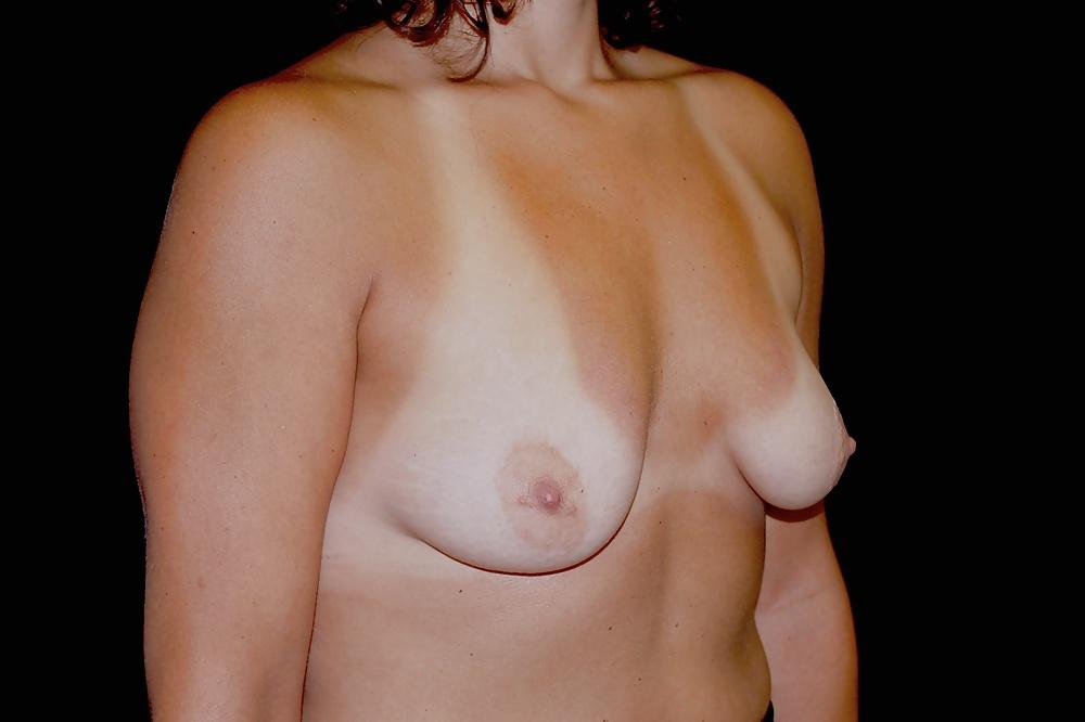 Nyc breast augmentation