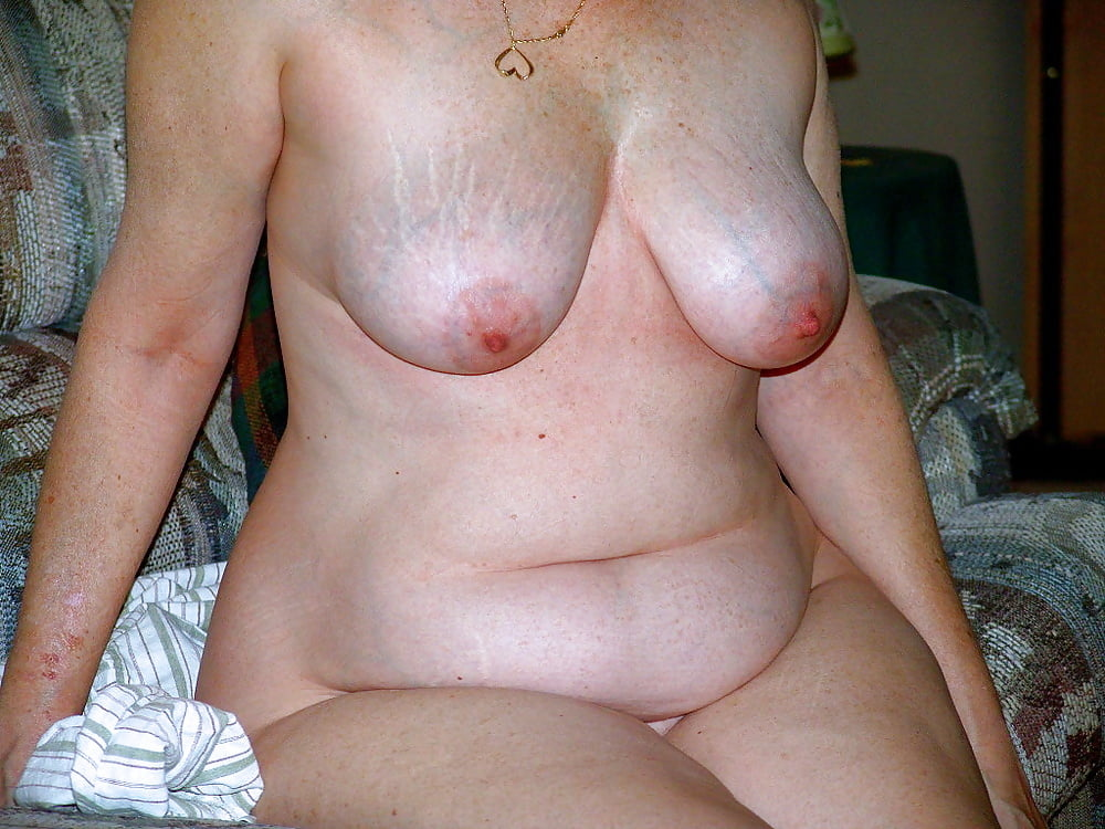 Nude Women With Stretch Marks Belly