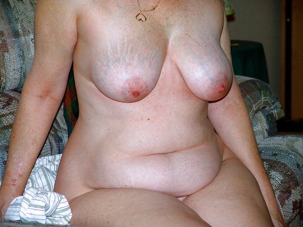 Mature Saggy Tit Stretch Mark