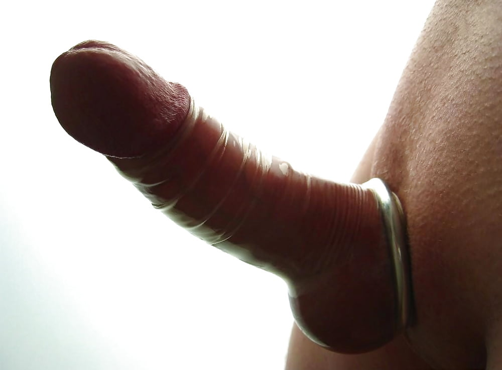 White Coating In Penis And Redness