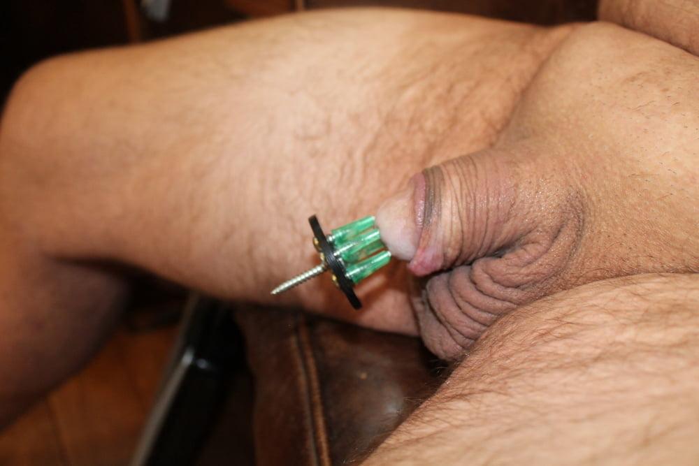 Genital numbness