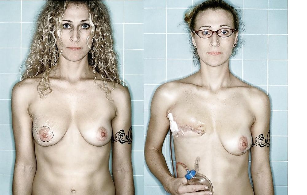Mastectomy sex 13