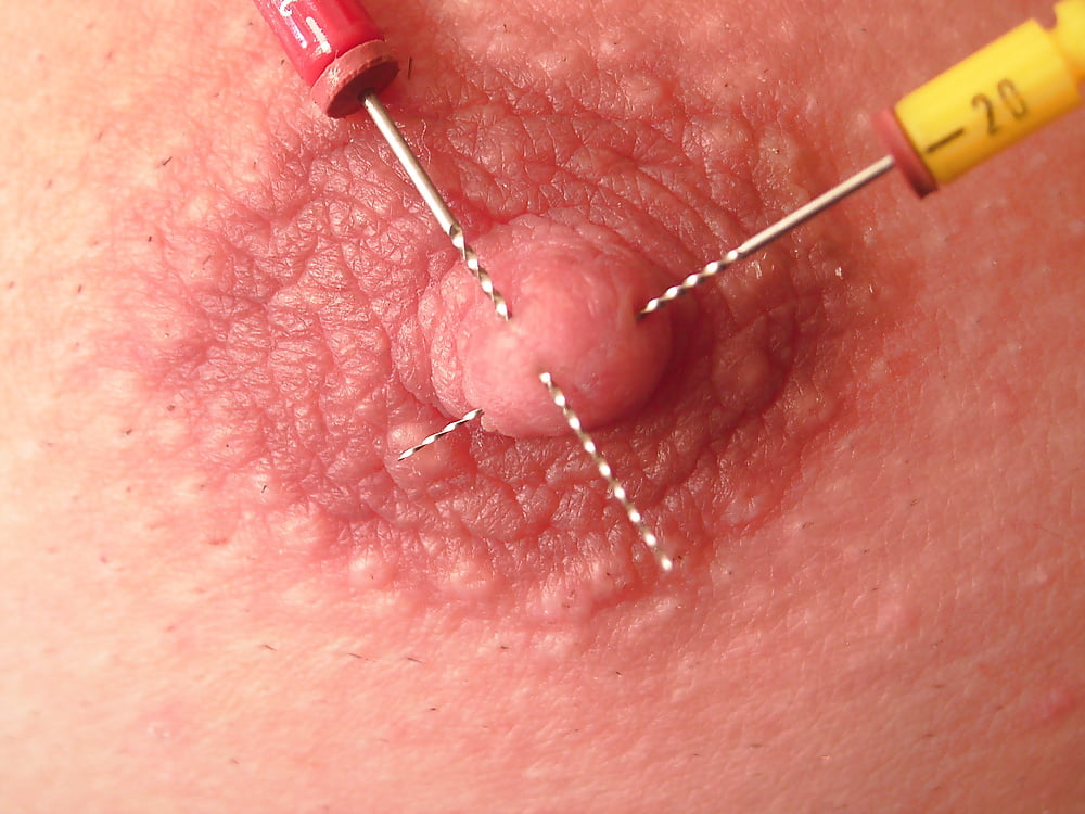 Girl gets lots of needles in her areola and nipple