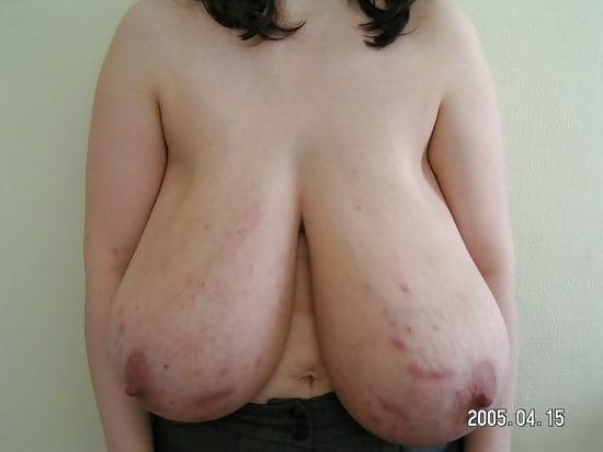 Skinny women with massive tits