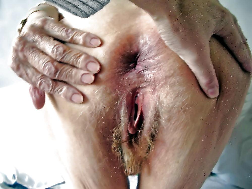 Обвисший раздроченный анал