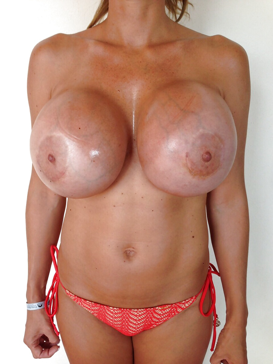 women-fake-boobs-hard-pics-free