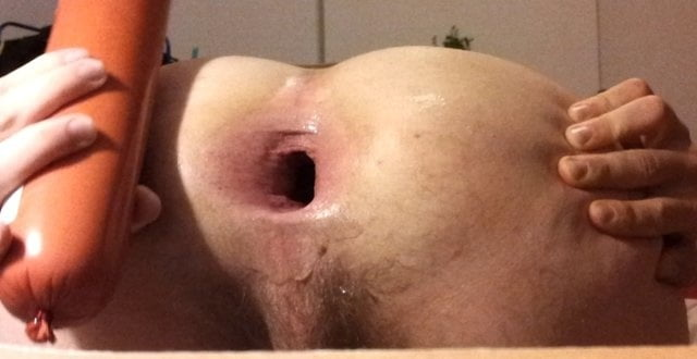 wall-object-in-male-anus