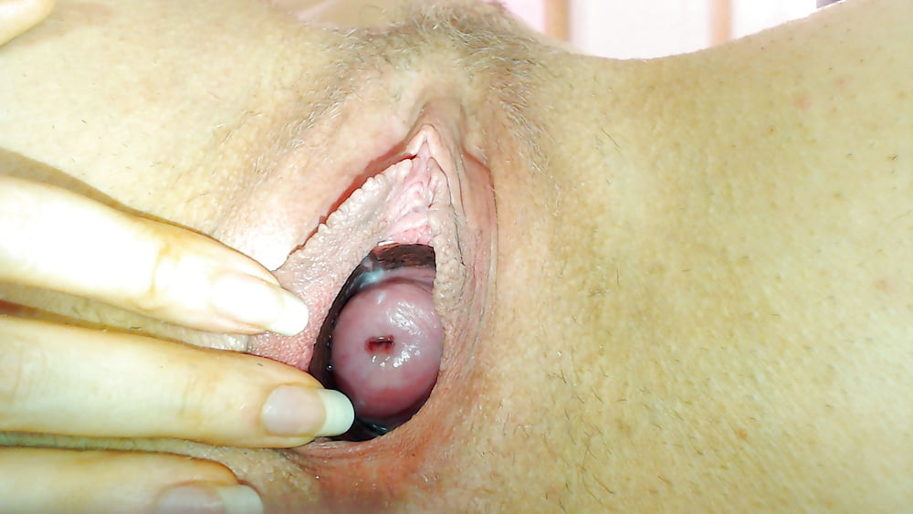 extreme-gynecological-close-ups-of-the-vagina-hairy
