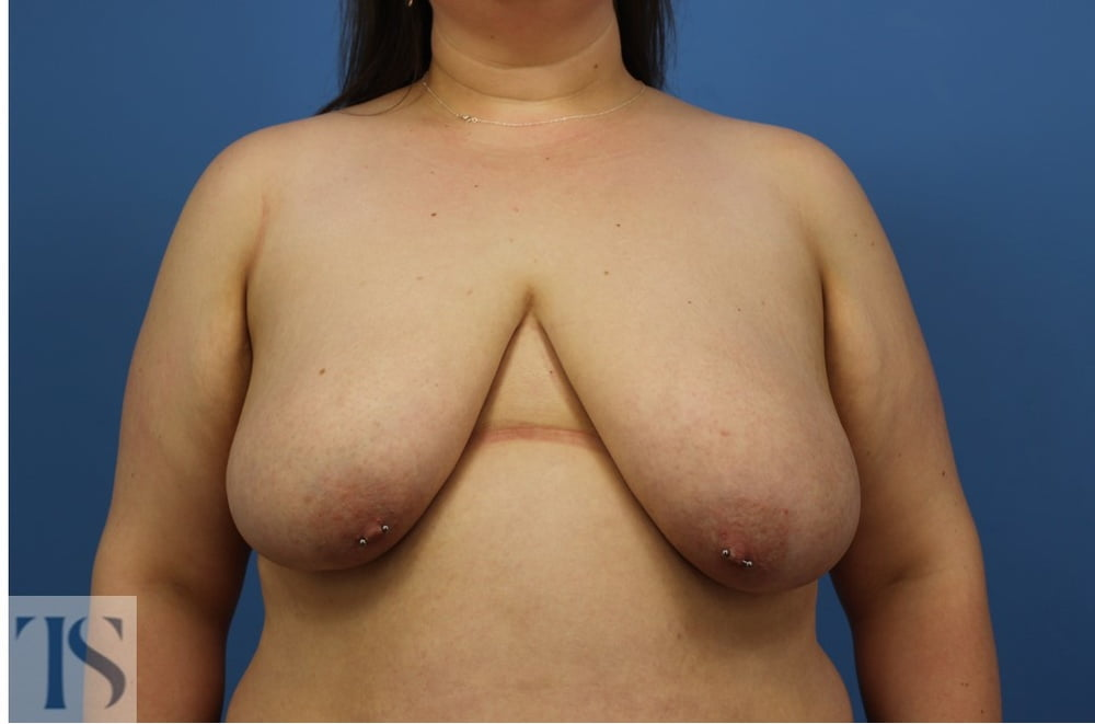 Scar treatment after breast reduction