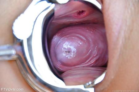 Cervix play
