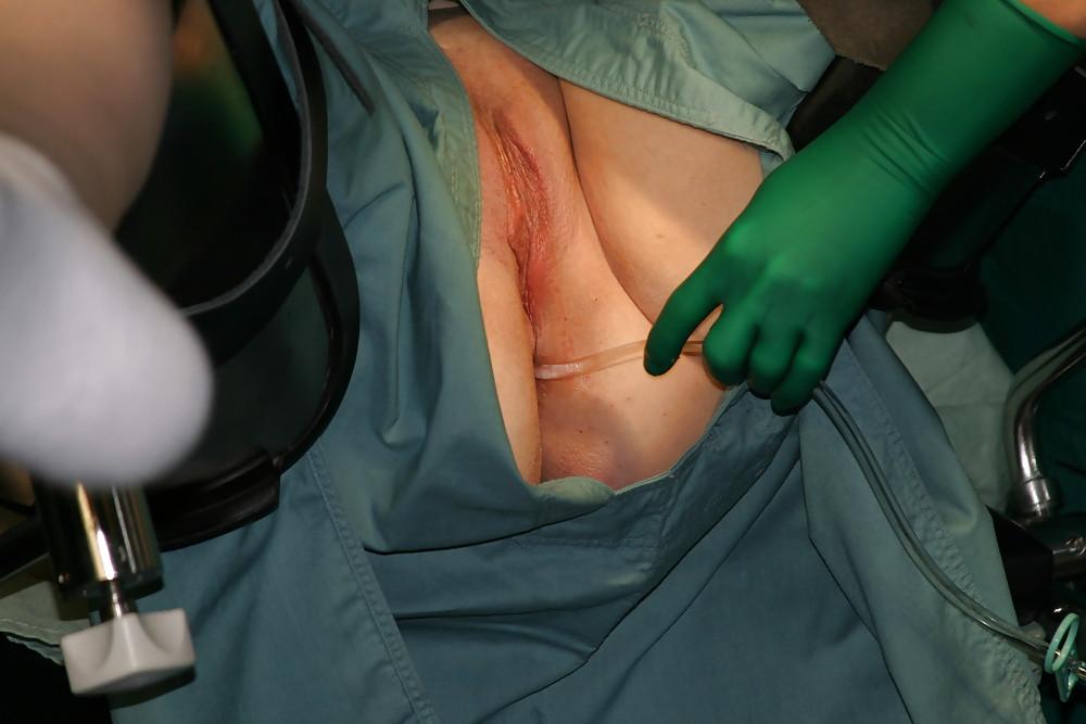 Anal reconstructive surgery pictures, nudist michael bradbury