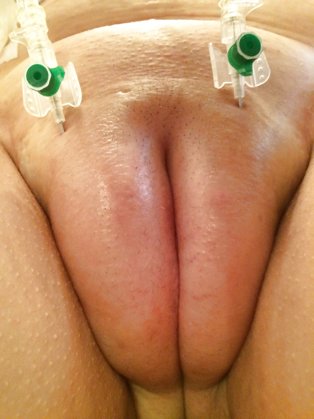injection-in-female-butt-porno