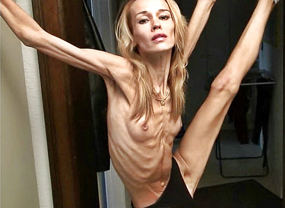 Anorexic woman nude