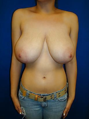 Naked Augmented Nude Female Breast Pics Pics