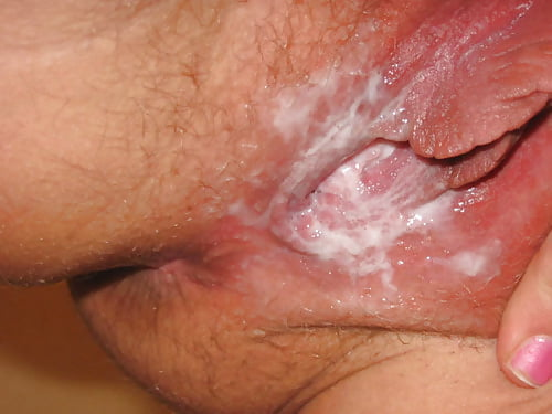 Vaginal discharge white