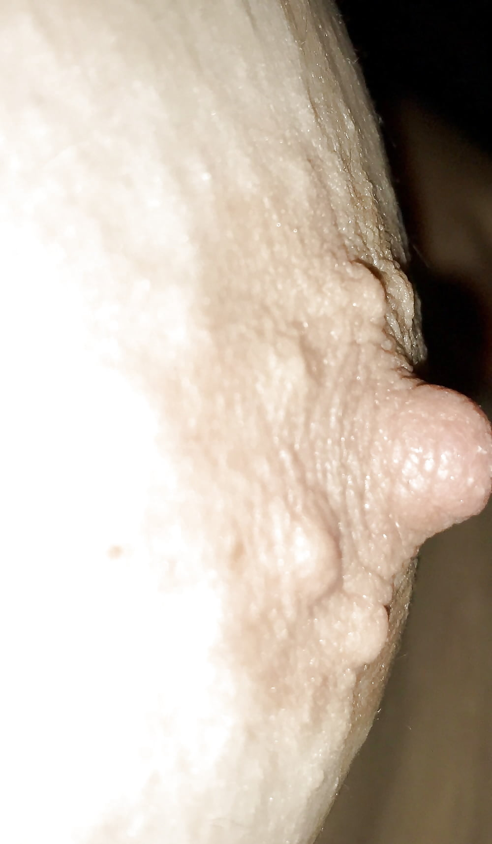 Glands of montgomery porn — pic 6