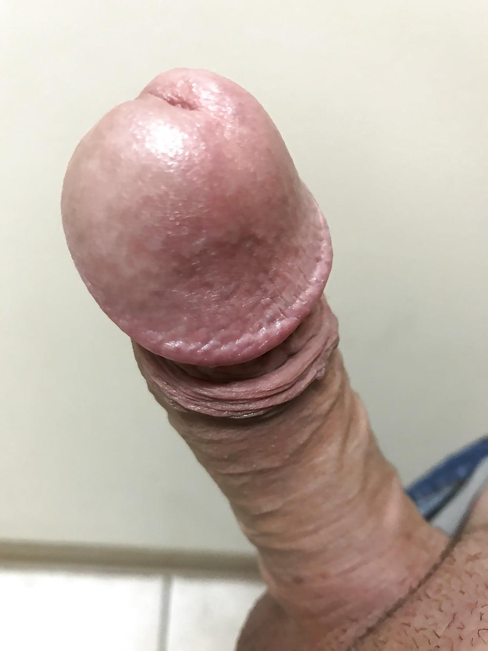 Nude blackhead penis photos