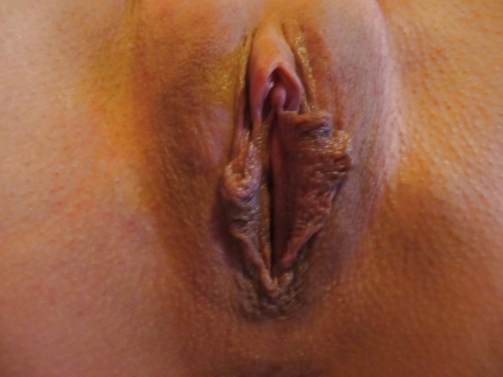 Polyps on vagina picture