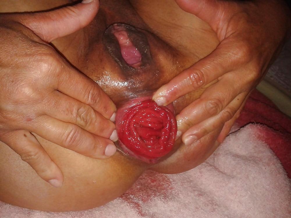 Prolapse Cervix Free Pics