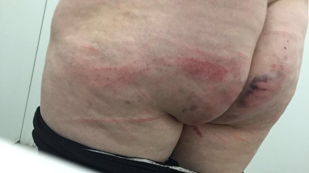 Penis injury bruise