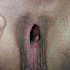 Second Clitor Inside Pussy! Girl Have Two Clitors! Amazing!