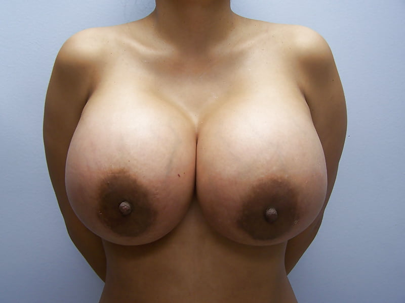 louisville-ky-boob-implants-nude-family-sex-mobile