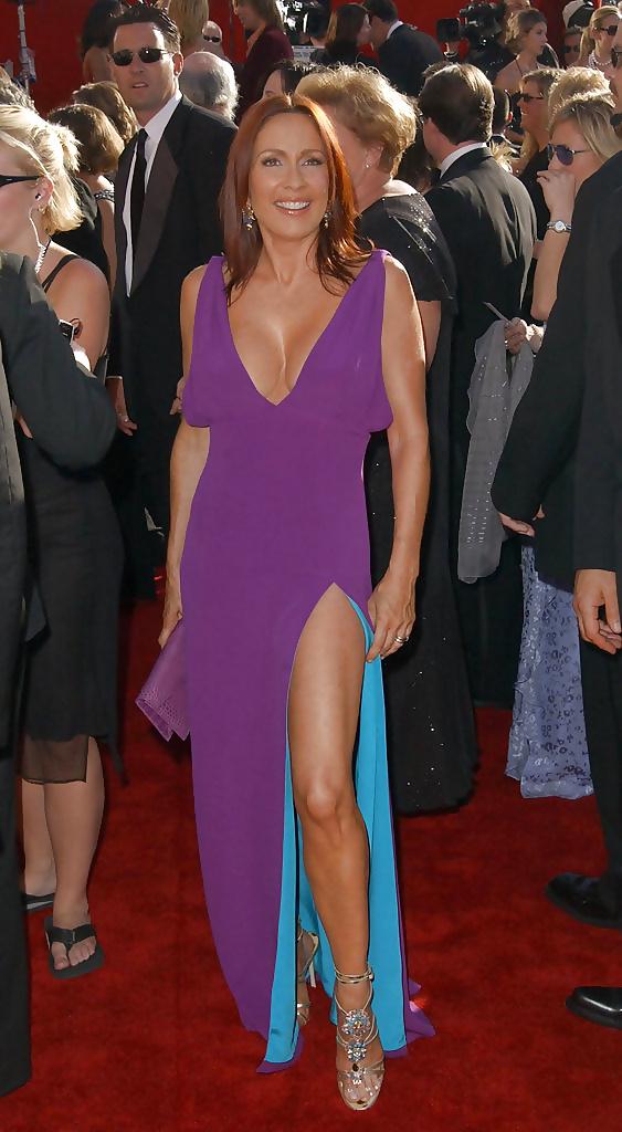 Patricia heaton bikini pics-1246