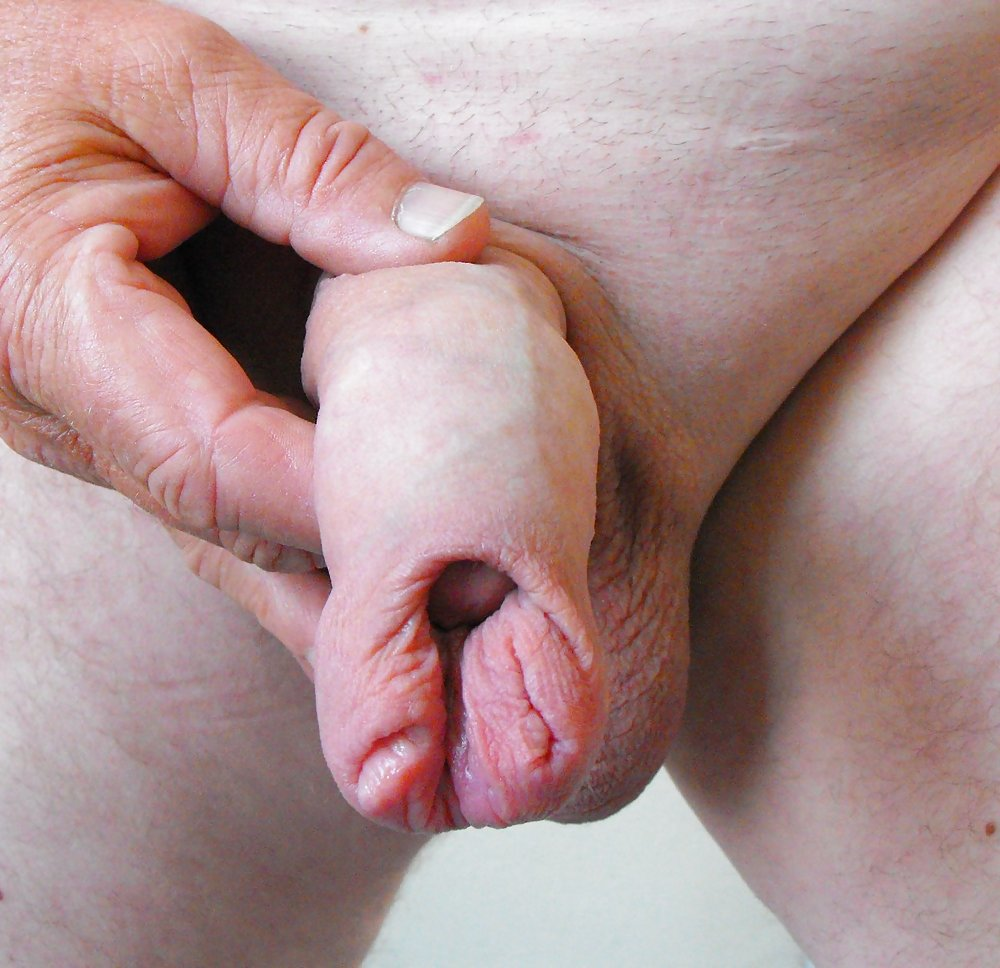 Free Foreskin Porn Pictures Best Gay Sex Sites